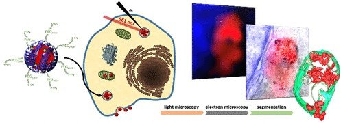High-Contrast Imaging of Nanodiamonds in Cells by Energy Filtered and Correlative Light-Electron Microscopy: Toward a Quantitative Nanoparticle-Cell Analysis